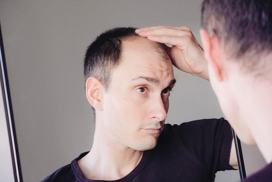 Male Pattern Hair Loss Wigs